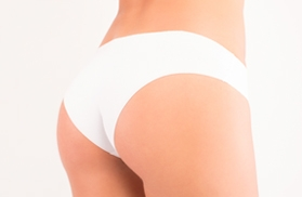 Get the perfect result of liposuction in two steps