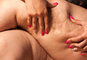 3 proven tips to reduce cellulite